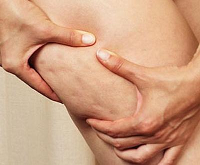 как убрать лишний жир на коленях