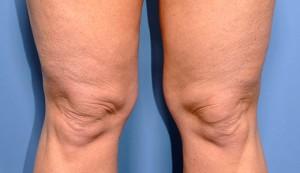 Как убрать целлюлит над коленками