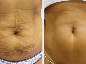 Подтягиваем кожу на животе после похудения в домашних условиях