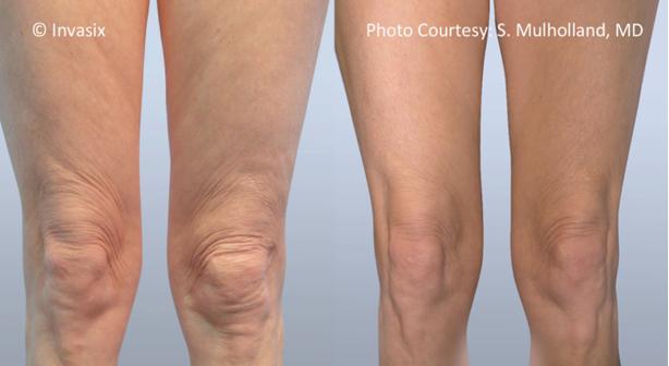 восстановить упругость кожи