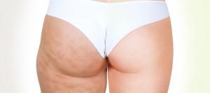 Если сбросить лишний вес – целлюлит исчезнет