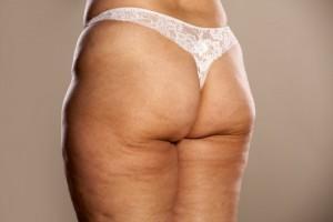 Целлюлит  у людей с лишним весом